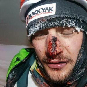 Winter K2: Bielecki Hit by Rock; Urubko back in action