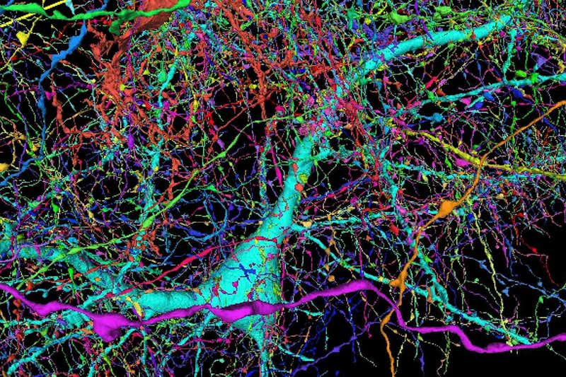 Colorized view of nerve fibres connecting to a neuron.